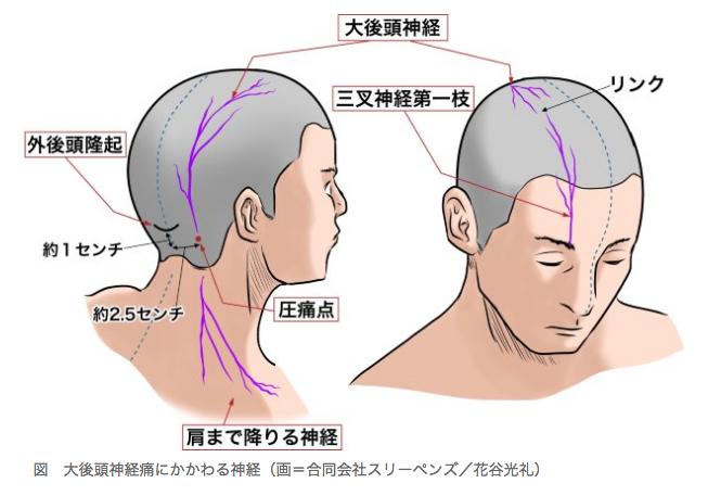 後頭 神経痛 対処